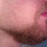 Minoxidil (Rogaine) for beards